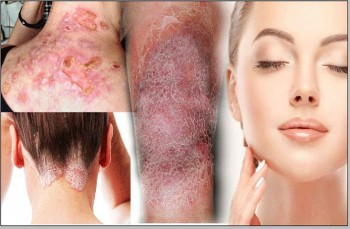 Certificate In Skin Disorders Alternative Therapy Treatment