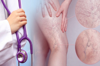 Certificate In Varicose Veins Treatment Alternative Therapy